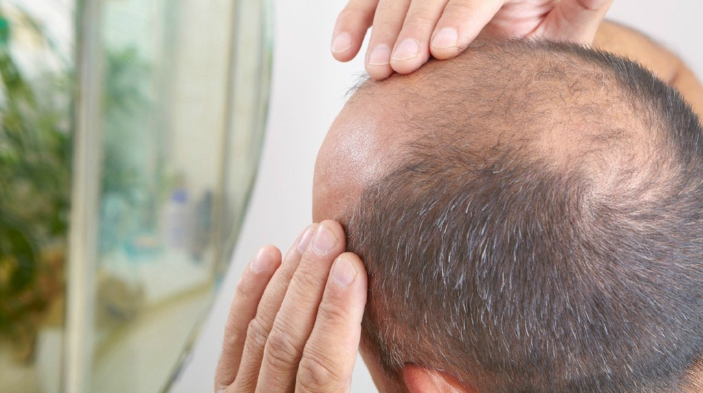 Treatment for Hair Loss and Baldness